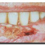 SALUD: Cáncer de labios. Atención para el labial que usan!!