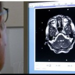 SALUD: Nuevos avances para detectar el Alzheimer