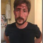 DENUNCIA: Golpearon y amenazaron de muerte al concejal Hernán Letcher