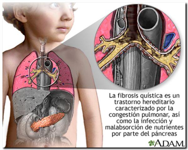 SALUD: Fibrosis quística. Lanzan un nuevo medicamento de fabricación nacional