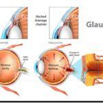 CIENCIA: Nueva tecnología para controlar el glaucoma